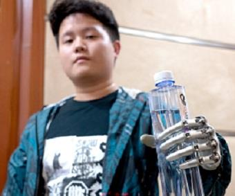 OY Motion bets big on bionic hand exports